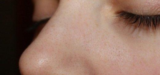 Як позбутися від чорних крапок на обличчі